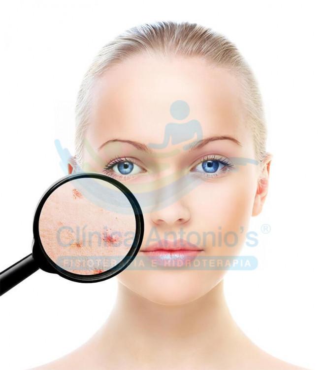 Acne: causas e tratamentos