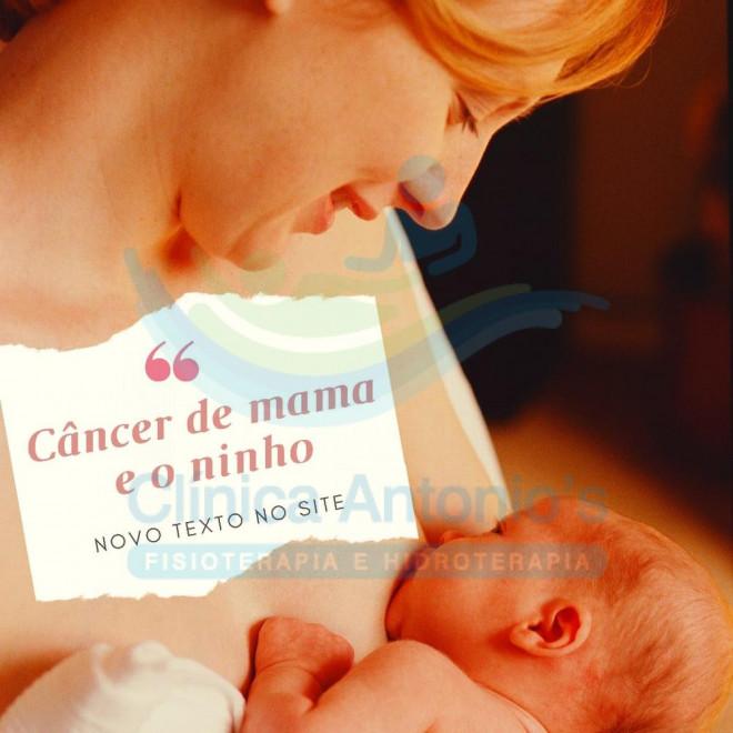 """Câncer de mama e o """"ninho"""""""