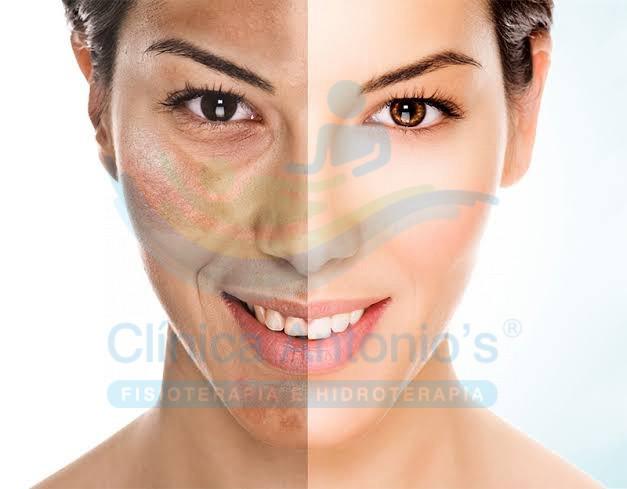 Como se formam as manchas na pele e o que fazer para melhorar?