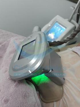 Criolipólise - Tratamento para redução de medidas, através do congelamento das células de gordura