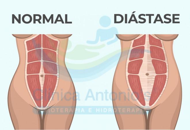 Diástese abdominal: o que é, como previnir e tratar