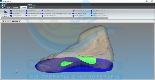 Palmilhas Posturais com Tecnologia 3D