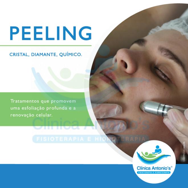 Peelings Químicos e suas indicações