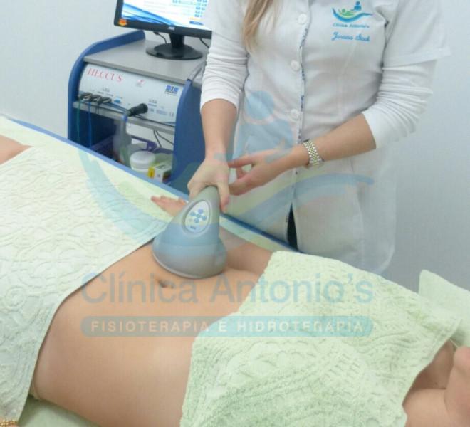 Pós operatório de Lipoaspiração e Abdominoplastia